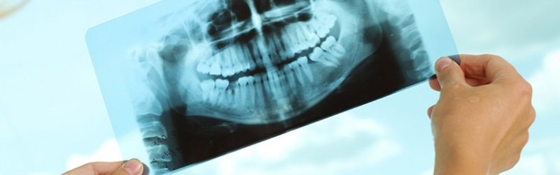 radiologia-dentaria